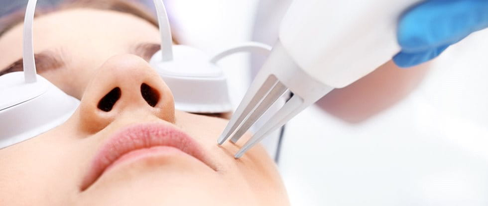 Laser treatment: laser treatment skin